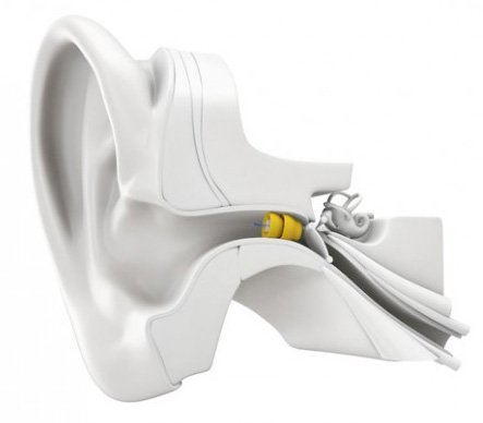 Lyric Invisible Hearing Aid