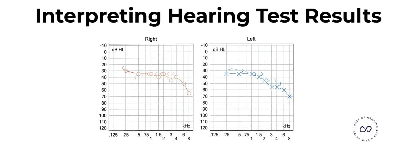 interpret-hearing-test-results